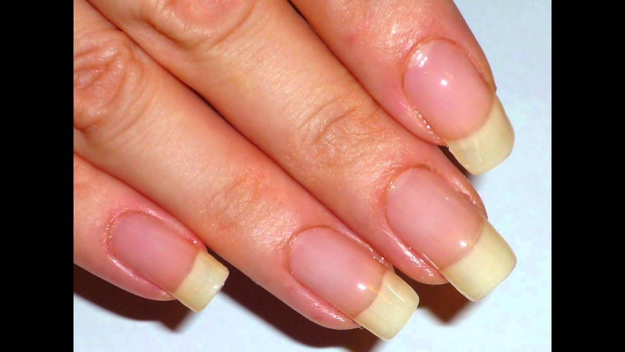 do nail beds grow back - YouTube