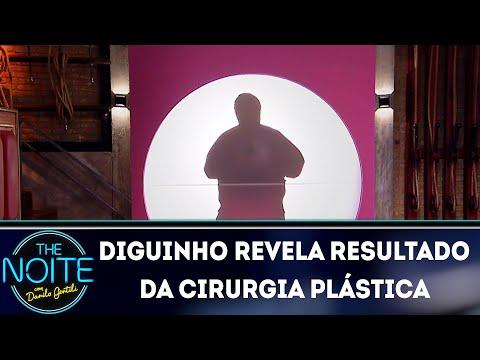Diguinho revela resultado da cirurgia plástica | The Noite (12/03/18)