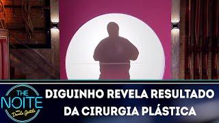 Baixar Diguinho revela resultado da cirurgia plástica | The Noite (12/03/18)