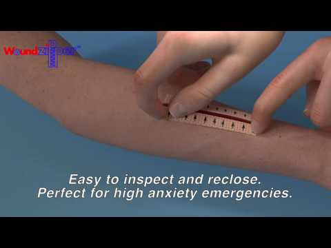 WoundZipper® employs powerful, flexible magnets encased in a proprietary medical-grade coating, designed to adhere to each side of the wound using a hypoallergenic adhesive. The WoundZipper® can be employed to close wounds in a fraction of the time required using conventional methods. Unlike sutures, staples, and steri strips, WoundZipper® achieves uniform closure along the entire length of the wound to speed healing and reduce scarring.