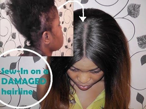 Sew in on damaged hairline how i do it youtube sew in on damaged hairline how i do it pmusecretfo Choice Image