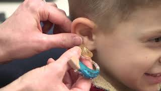 How To Insert An Earmold And Hearing Aid In A Child's Ear