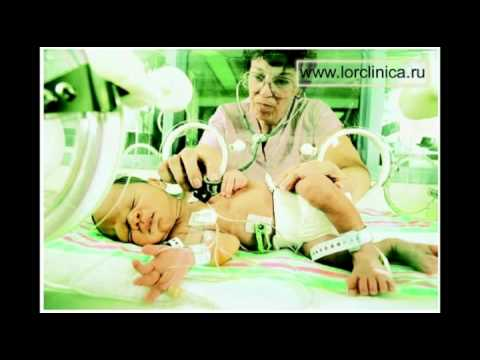 Синуситы - симптомы синуситов, хронический синусит у детей