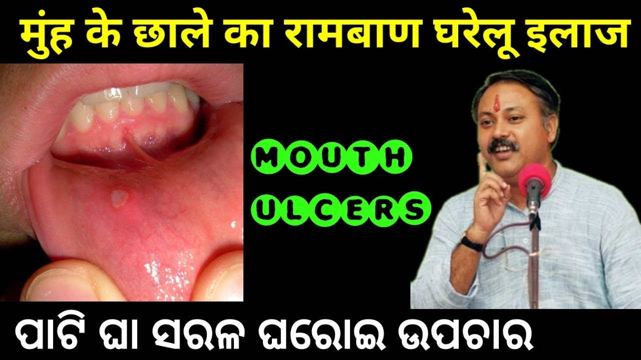 Mouth Ulcer causes & Ayurvedic Treatment in hindi | Muh ki chhale | Mouth  ulcer treatment in hindi