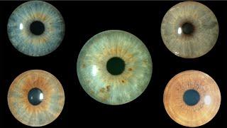 El color de los ojos: ojos grises y verdes. Centro de Oftalmología Bonafonte. Barcelona. (España)