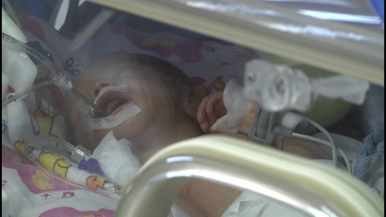 Апарат дихальної підтримки для немовлят з явився у перинатальному центрі 6a61f8f1ccf39