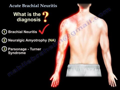 brachial plexus neuritis ,parsonage turner - everything you need, Skeleton
