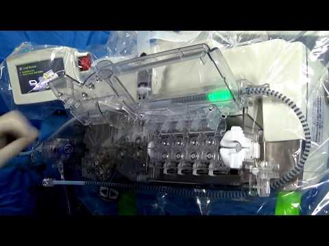 Robotic PCI Of RCA Lesion TRICO 2018