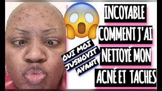 .. voici comment j'ai me suis débarrasser de l'acné et taches + 🎁 ( Part 1 )