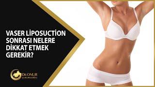 Vaser Liposuction Sonrası Nelere Dikkat Etmek Gerekir?
