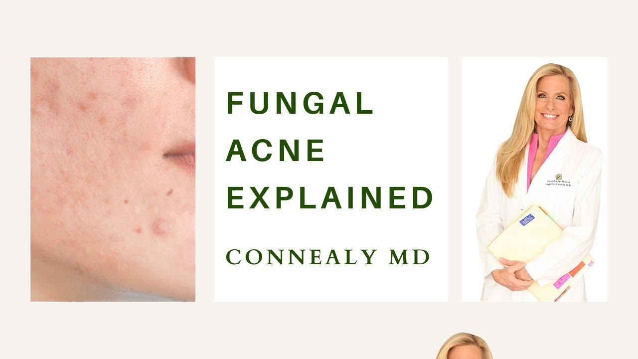 Why Do Some People Get Fungal Acne? And How to Fix it.