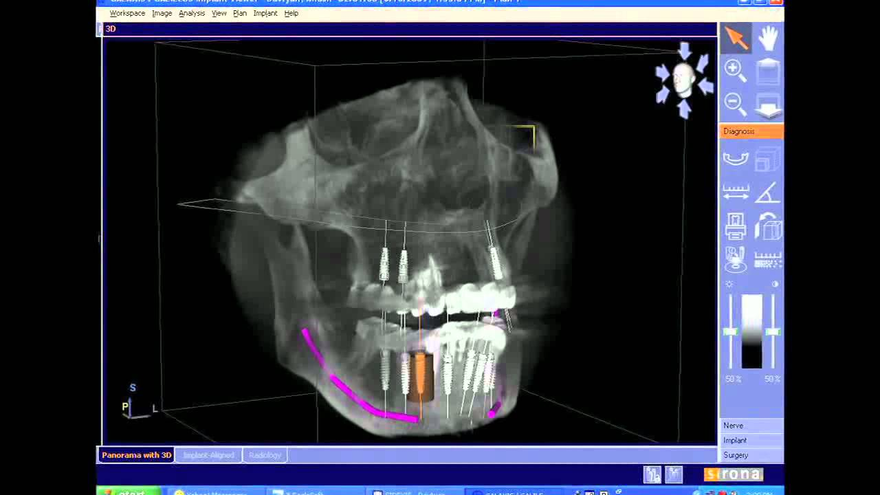 CEREC/Galileos integration: Dr. Sameer Puri shares his expertise