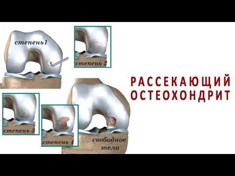 Причины и лечение рассекающего остеохондрита