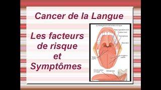 Cancer de la langue : Facteurs de risque et Symptômes