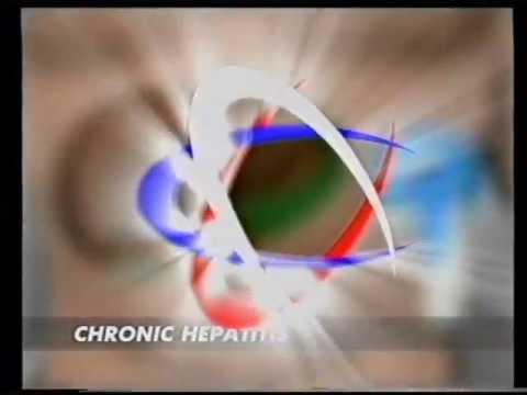diadens nuo hipertenzijos)