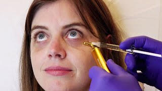 Women With Dark Circles Get Under-Eye Injections For The First Time
