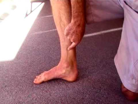 How to strengthen Tibialis Posterior to cure Shin Splints - YouTube