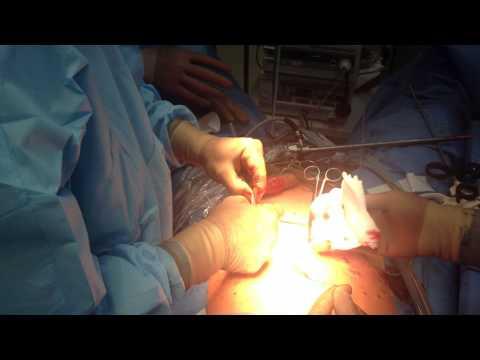 Инвазивная карцинома молочной железы и её прогноз