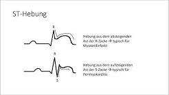 EKG verstehen; die Grundlagen (EKG Crashkurs Teil 1)