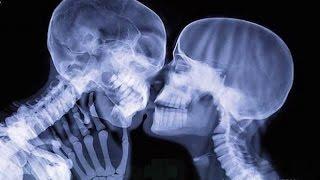 Röntgen Altında Çekilmiş 14 Görüntü