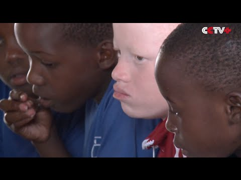 Albinos in Tanzania Struggling to Survive Due to Discrimination, Killings
