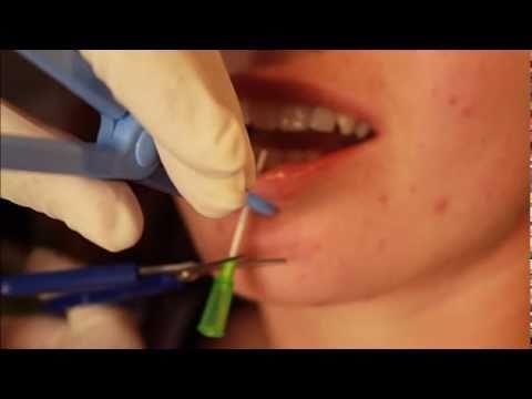 meilleure vente nouvelles variétés Prix usine 2019 Piercing lèvre labret TattooStudioTewfick.com Angers