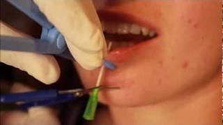 Piercing lèvre labret TattooStudioTewfick.com Angers