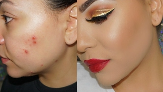 How to Cover Acne & Scars with Makeup ! Cystic Acne & Acne Scars !