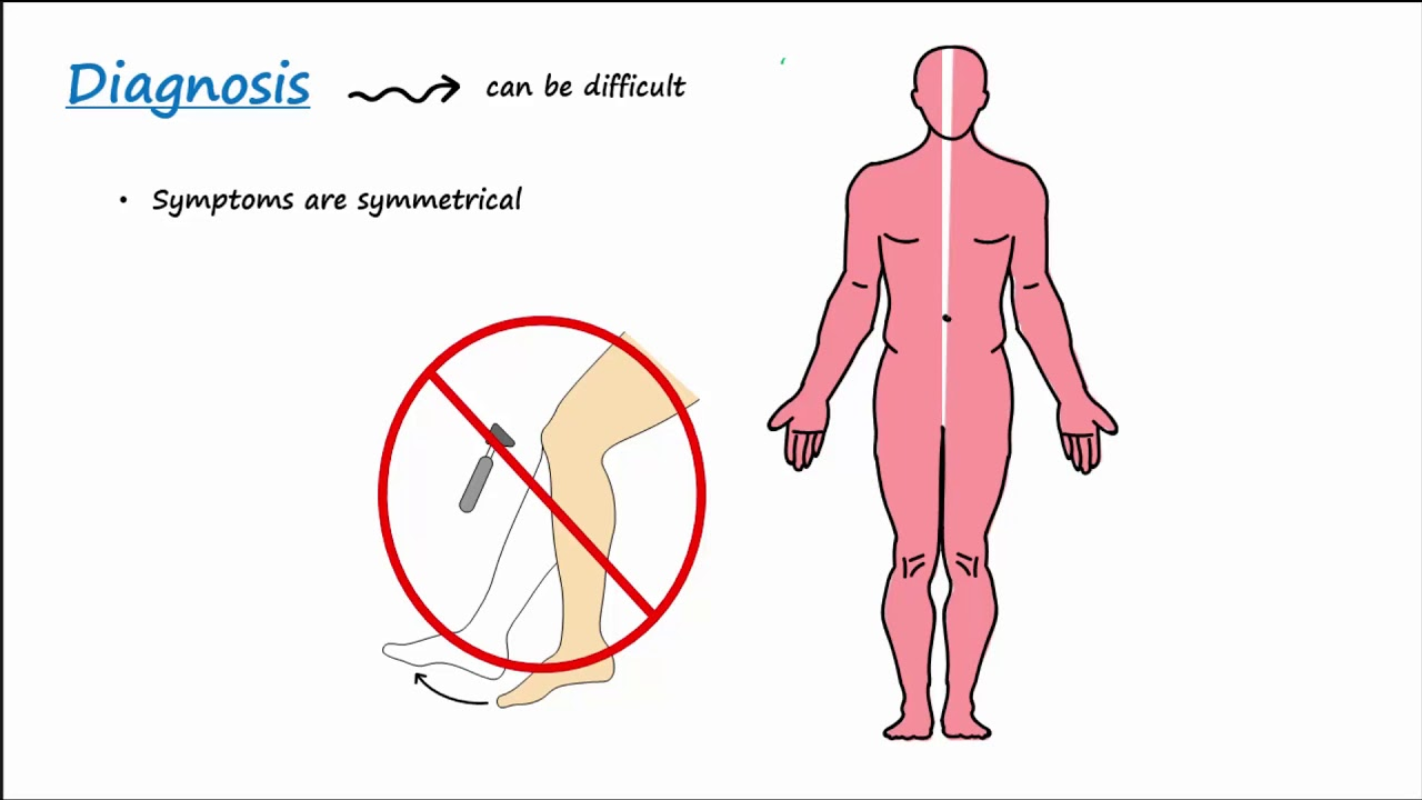 Guillain-Barre Syndrome (GBS) ...
