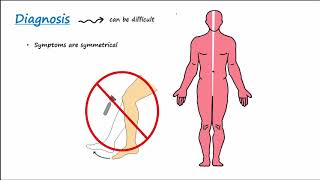 Guillain-Barre Syndrome (GBS) (Described Concisely)