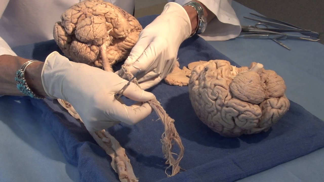 Neuroanatomy Video Lab: Brain Dissections