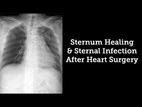 Sternum Healing & Sternal Infection Rates After Heart Surgery with Dr. Steve Bolling