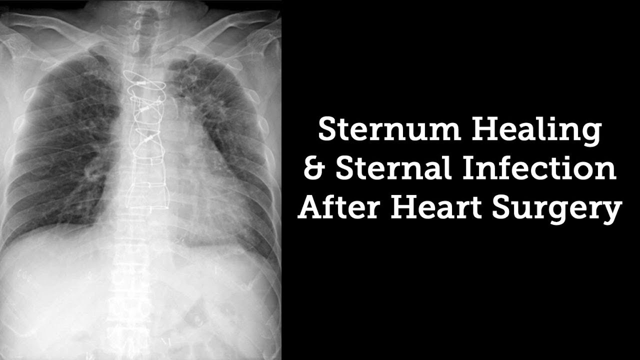 Sternum Healing & Sternal Infection Rates After Heart Surgery with ...