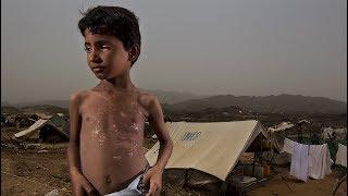 Congress Condemns Iran For SAUDI War In Yemen