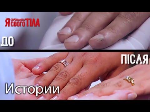 Бородавка под ногтем на руке