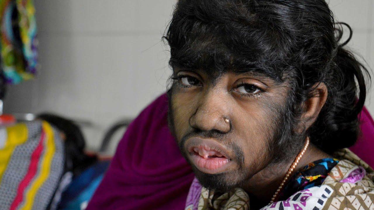 girl with 'werewolf' hair condition