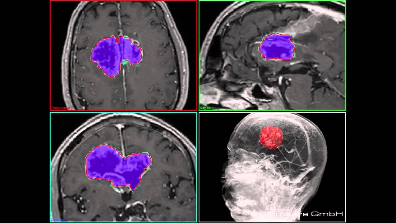 thesis on medical image segmentation