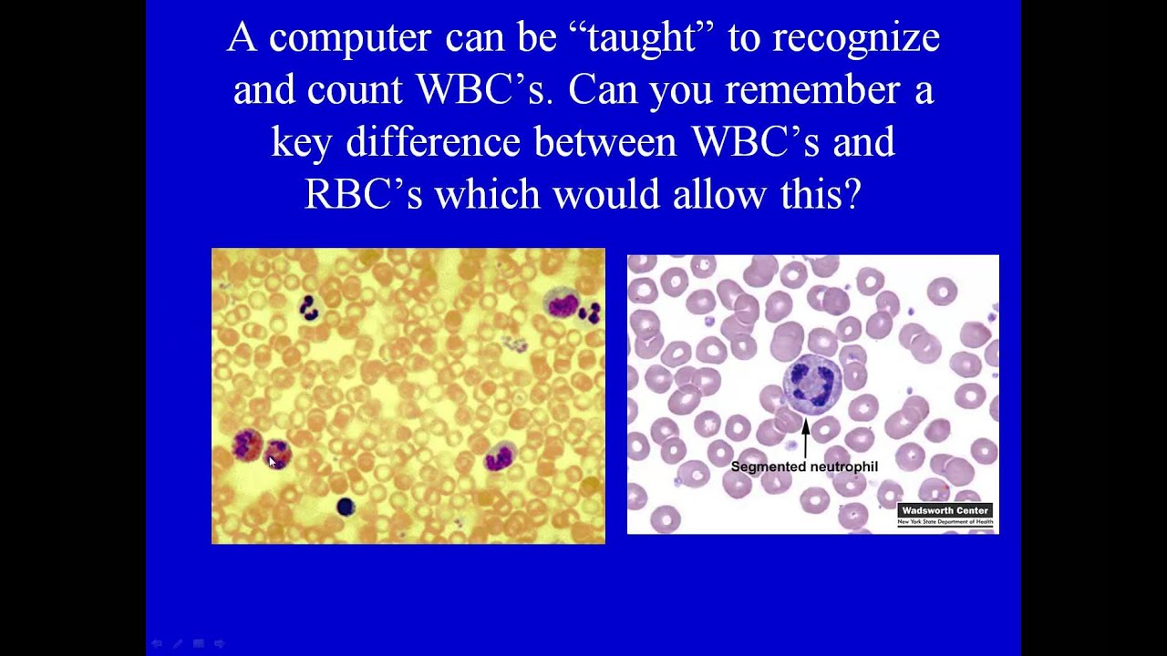 Interpretation of Total White Blood Cell Count and Differential