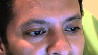 beneficios del ajo - diabetes,embolia, acné, presión alta,cancer,artritis parte 3