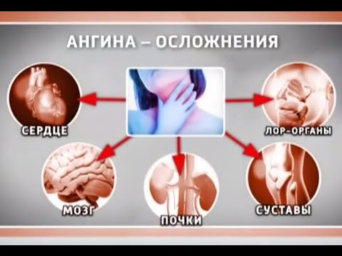 Как болеют ангиной