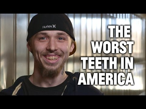 Mountain Dew Mouth and the Worst Teeth in America
