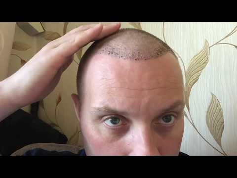 One week after hair transplant: Receding hairline treatment: Paul from Dublin, Ireland