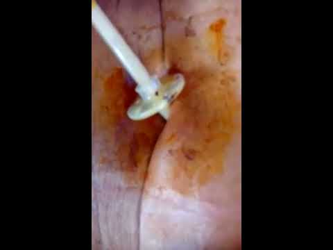Peg tube dressing