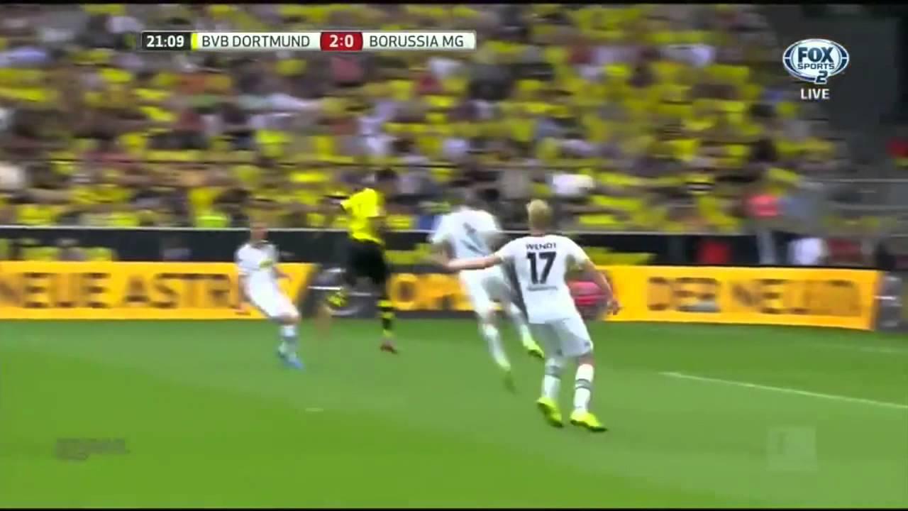 Dortmund Vs Gladbach