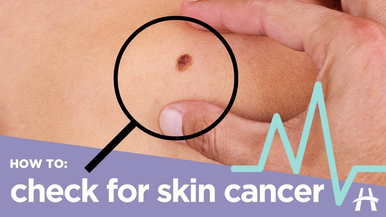 How To Check For Skin Cancer Youtube