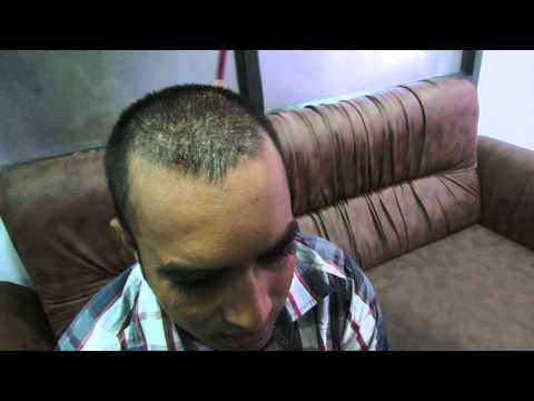 Best Hair Transplant Results in Bangalore at New You Hair Clinic