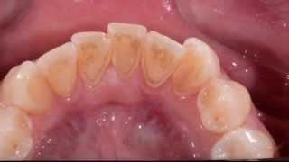 Профессиональная гигиена полости рта,дентикюр под микроскопом(Снятие зубных отложений под контролем дентального операционного микроскопа,denticure., 2014-07-16T13:22:24.000Z)