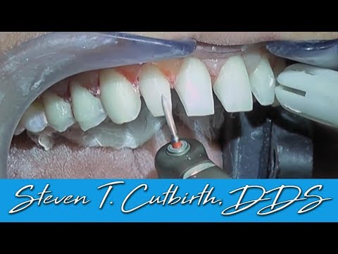Prepping Teeth for Veneers (In-Depth Instructions) - Dental Minute with Steven T. Cutbirth, DDS