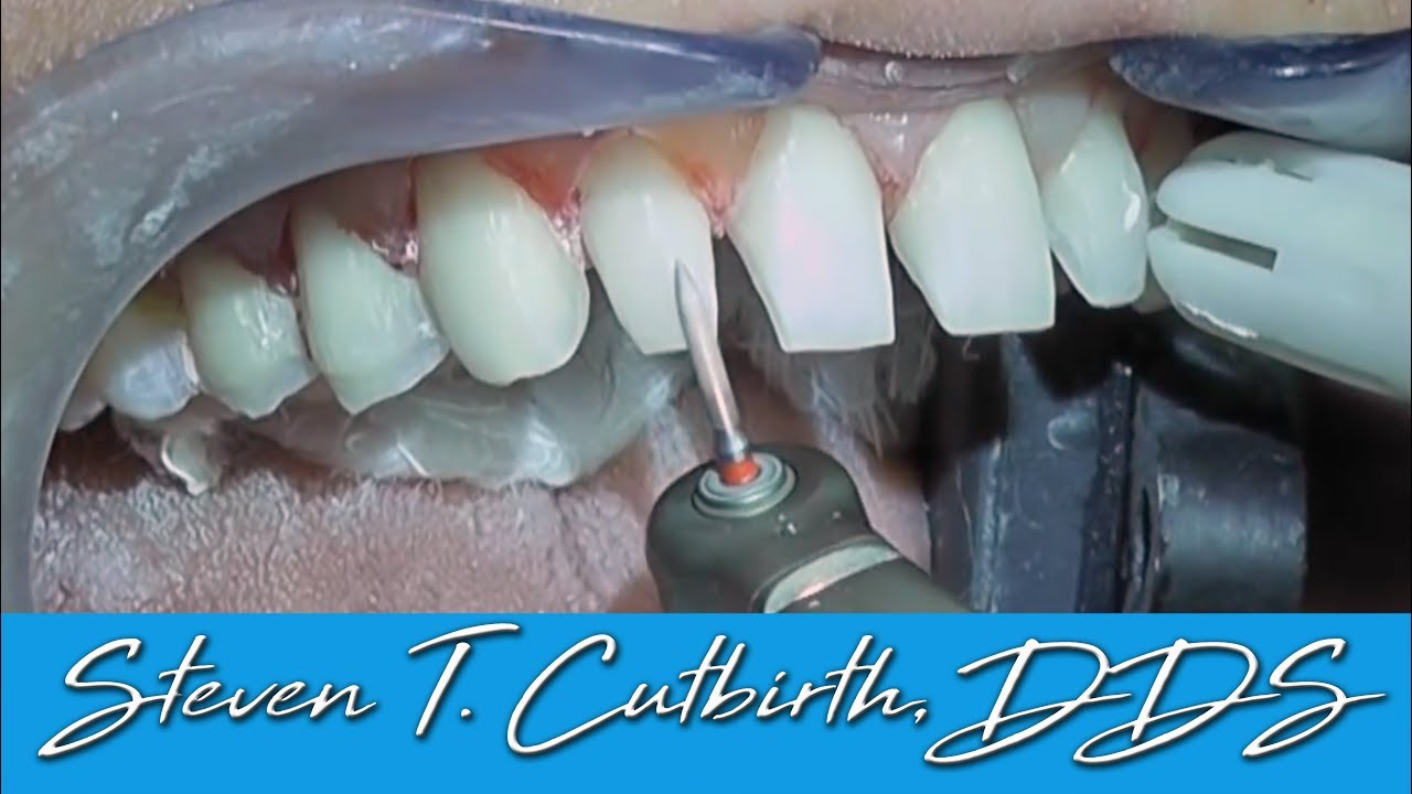 Photos shaved teeth for porceline veneers your phrase