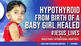 Hypothyroid from birth of a baby girl healed | Jesus_Lives | Supernatural Testimony